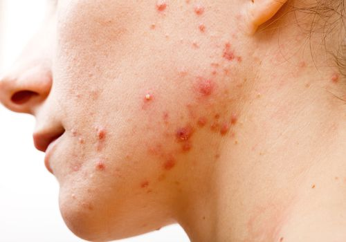 Acne Causes - Woman with acne on her jawline