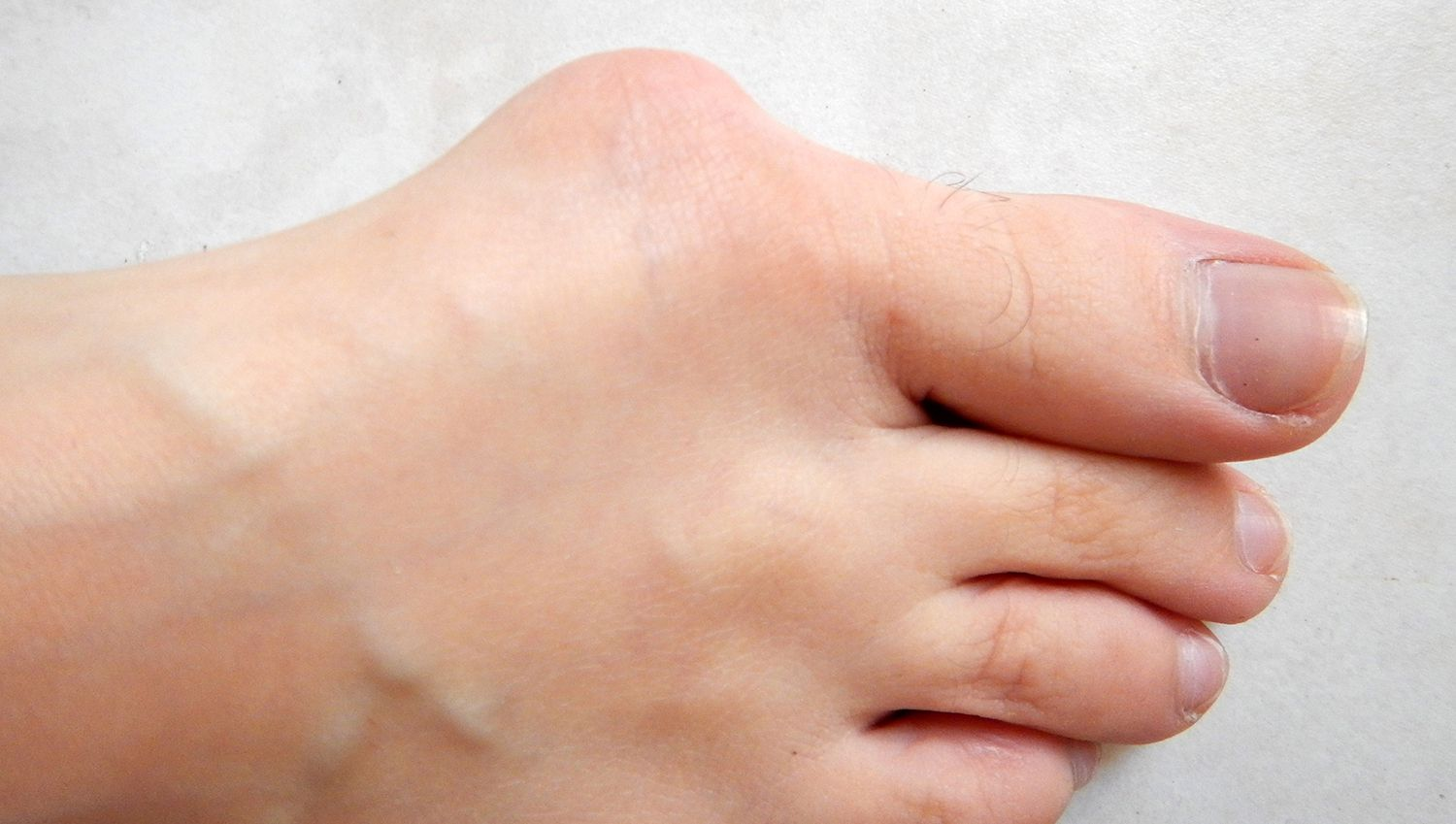 What Does a Bunion Look Like?
