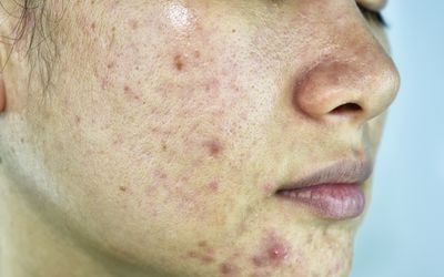 Treating Acne With Oral Minocycline