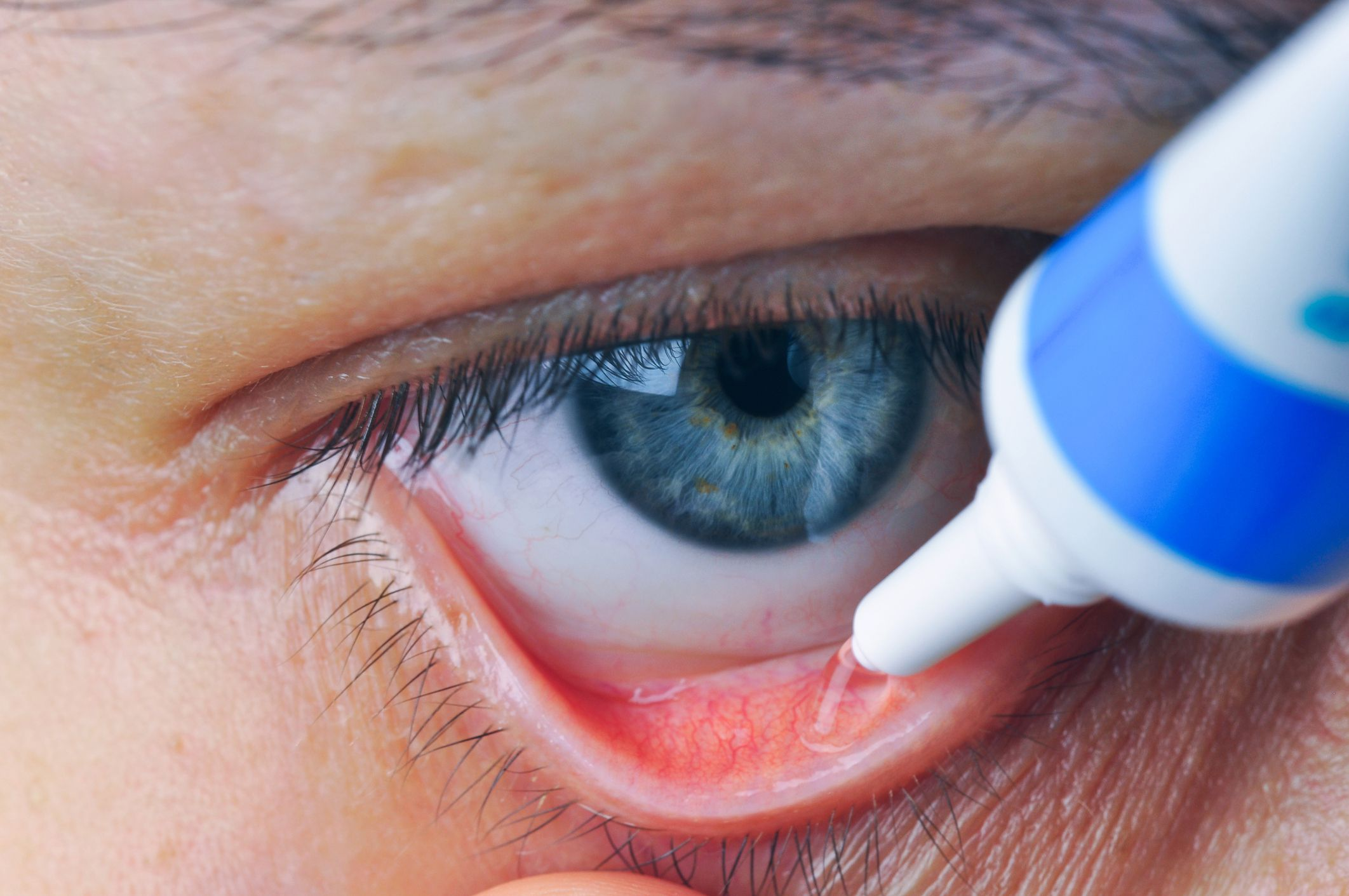 Antibiotic Eye Ointments: Uses, Side Effects, Dosages