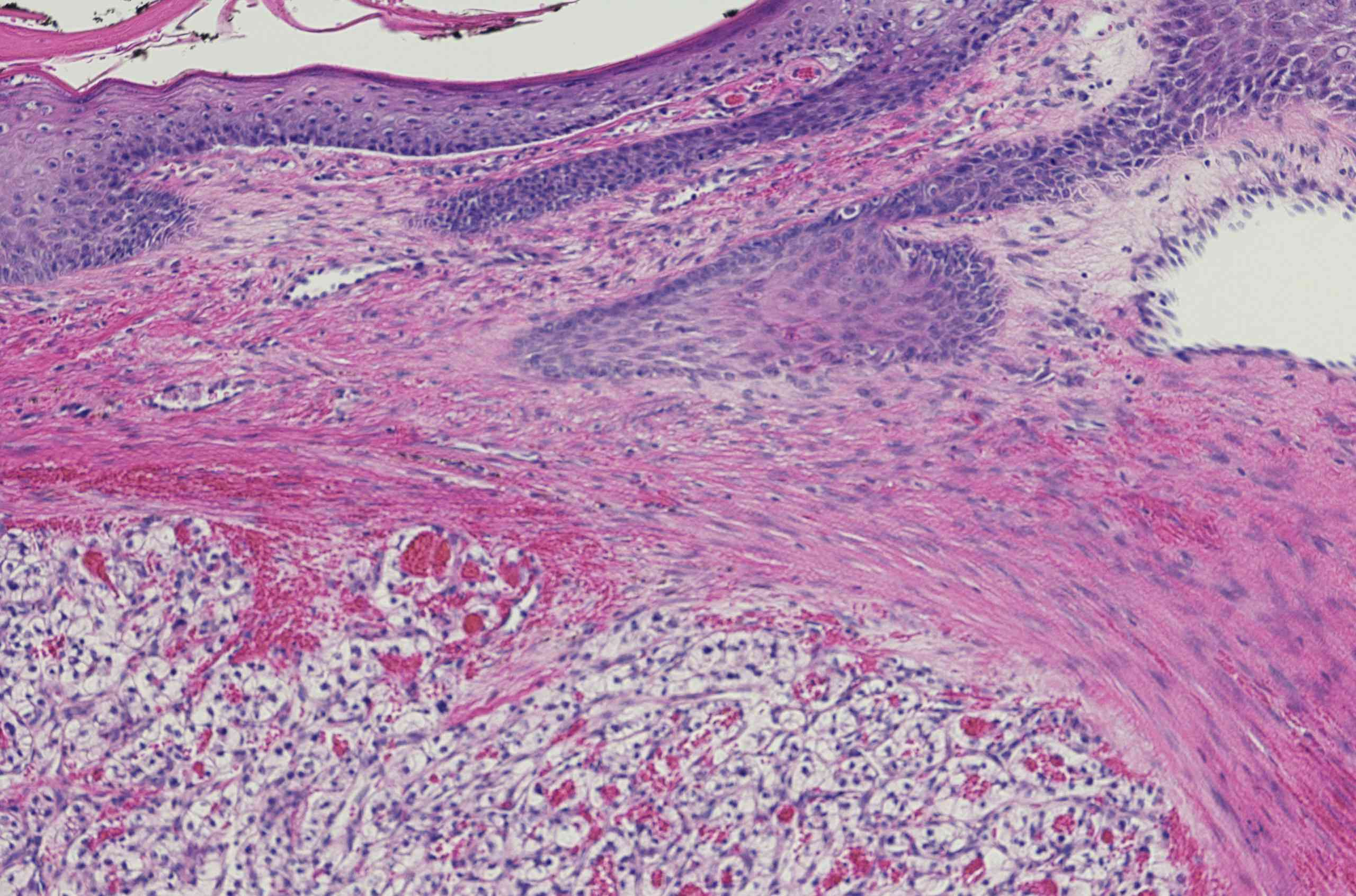 Clear Cell Renal Cell Carcinoma (CCRCC)