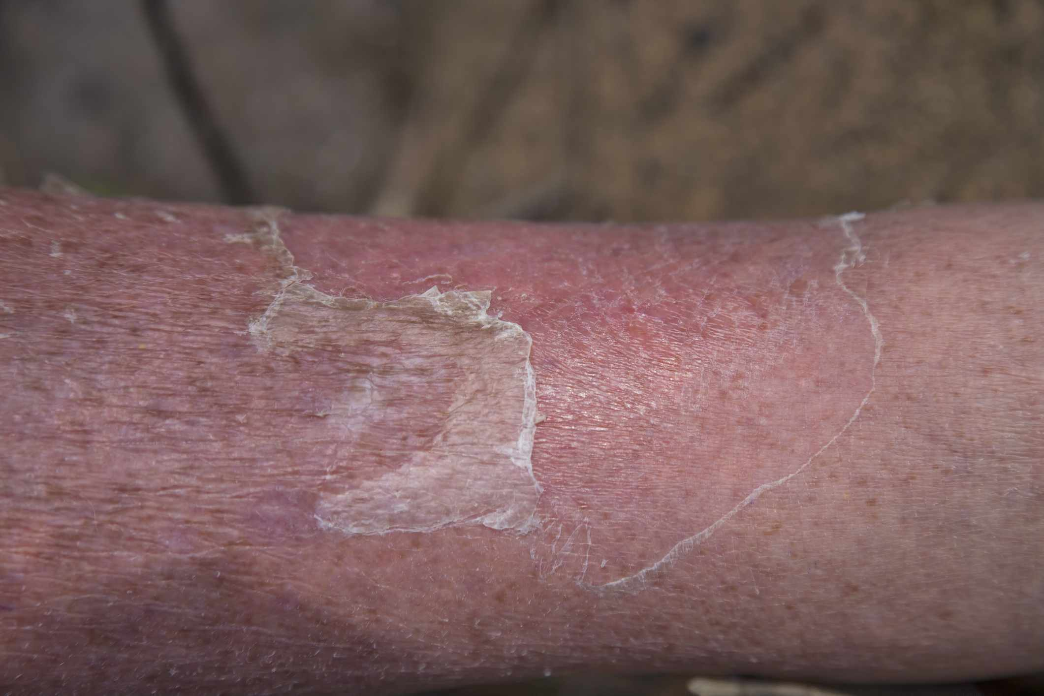 Cellulitis on a leg