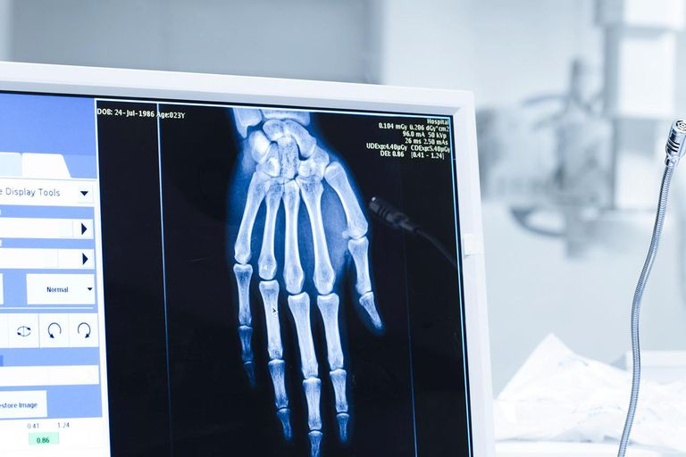 Analyzing x-ray or scann radiography in hospital