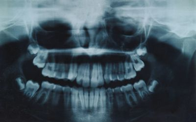 Guidelines for Recovery After Oral Surgery