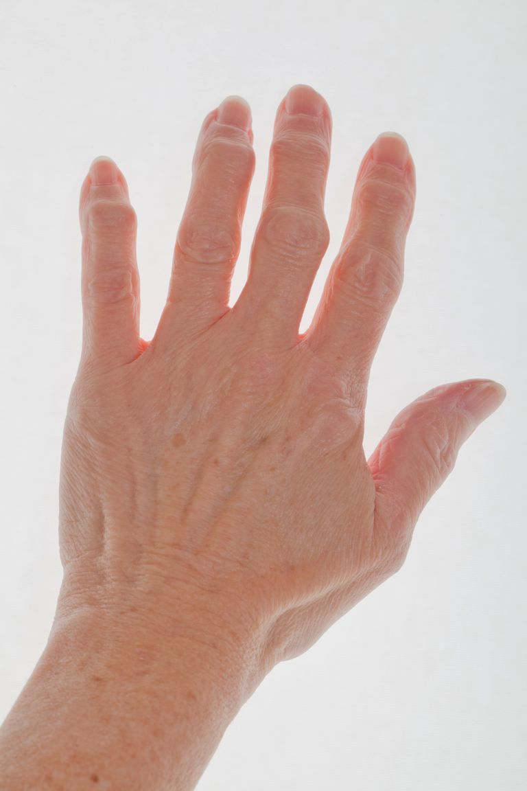 Gout In Ring Finger