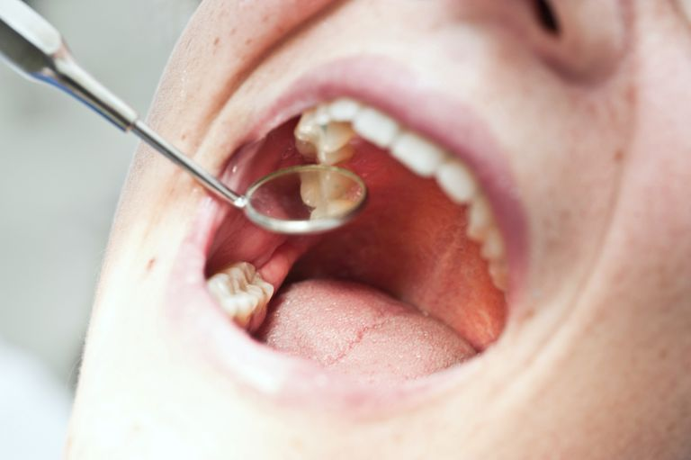 Close-up of patient's mouth during dental exam