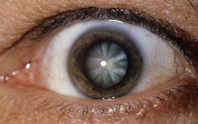 Close-up of eye showing cataract