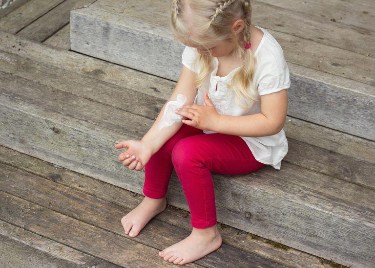 Little girl rubbing cream into her arm