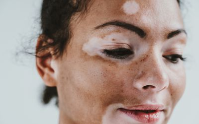 A very close up portrait of the face of a woman with vitiligo.