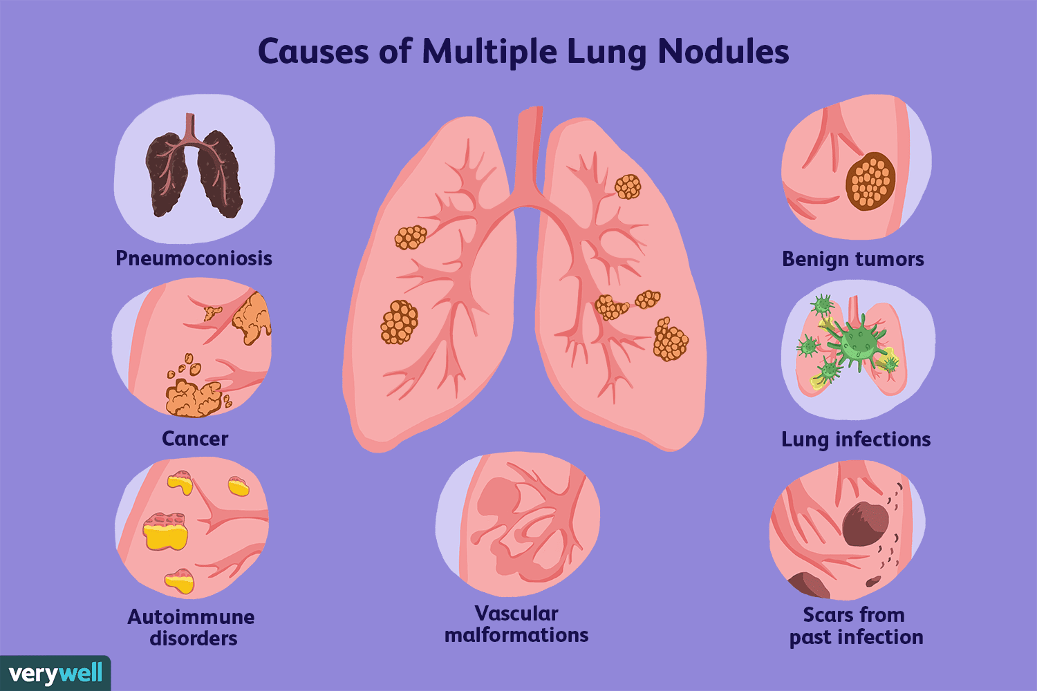 What Are Multiple Lung Nodules