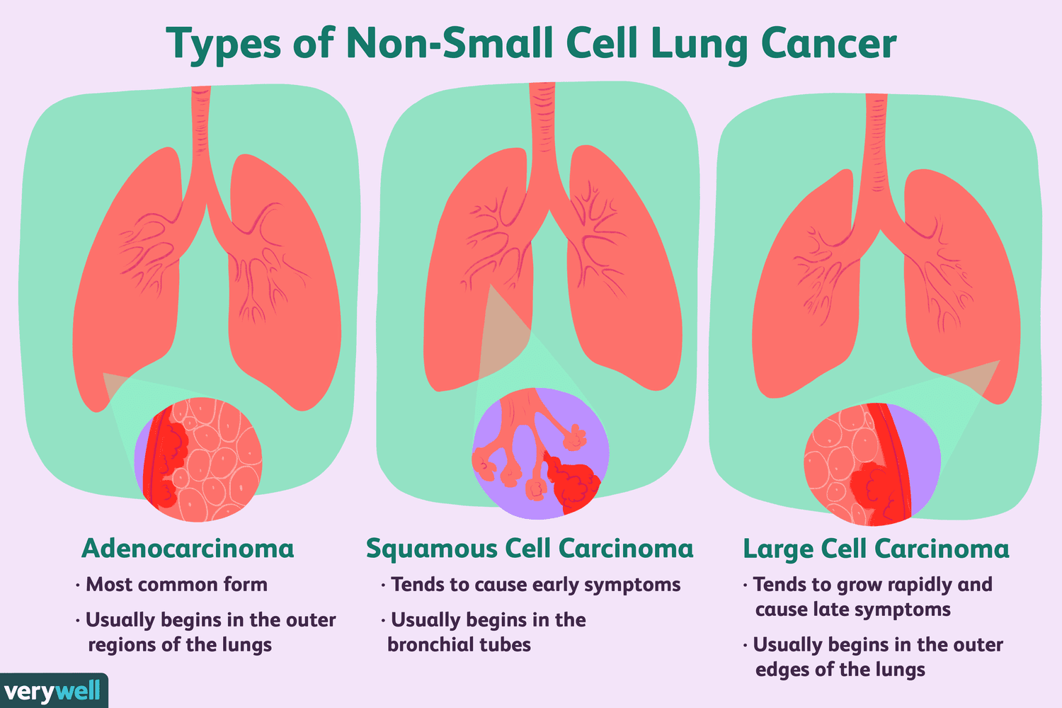 types of non small cell lung cancer