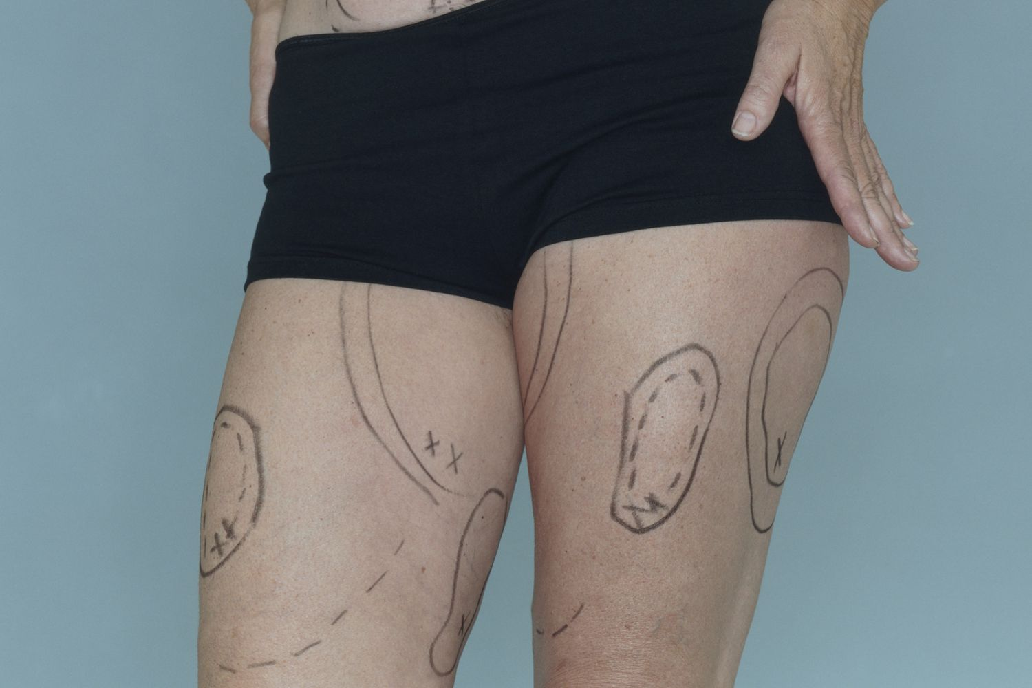 What Is a Thighplasty?
