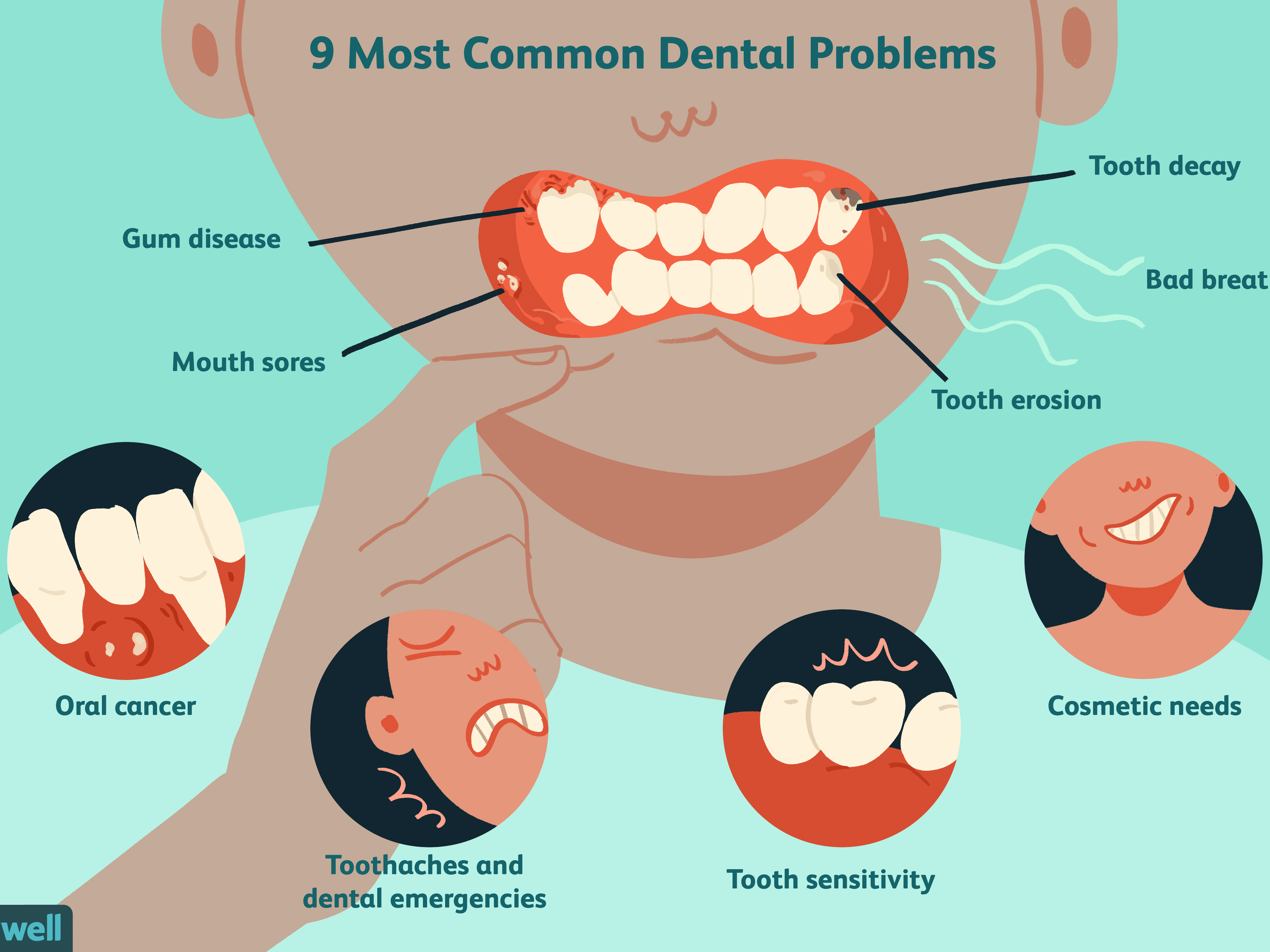 The 9 Most Common Dental Problems
