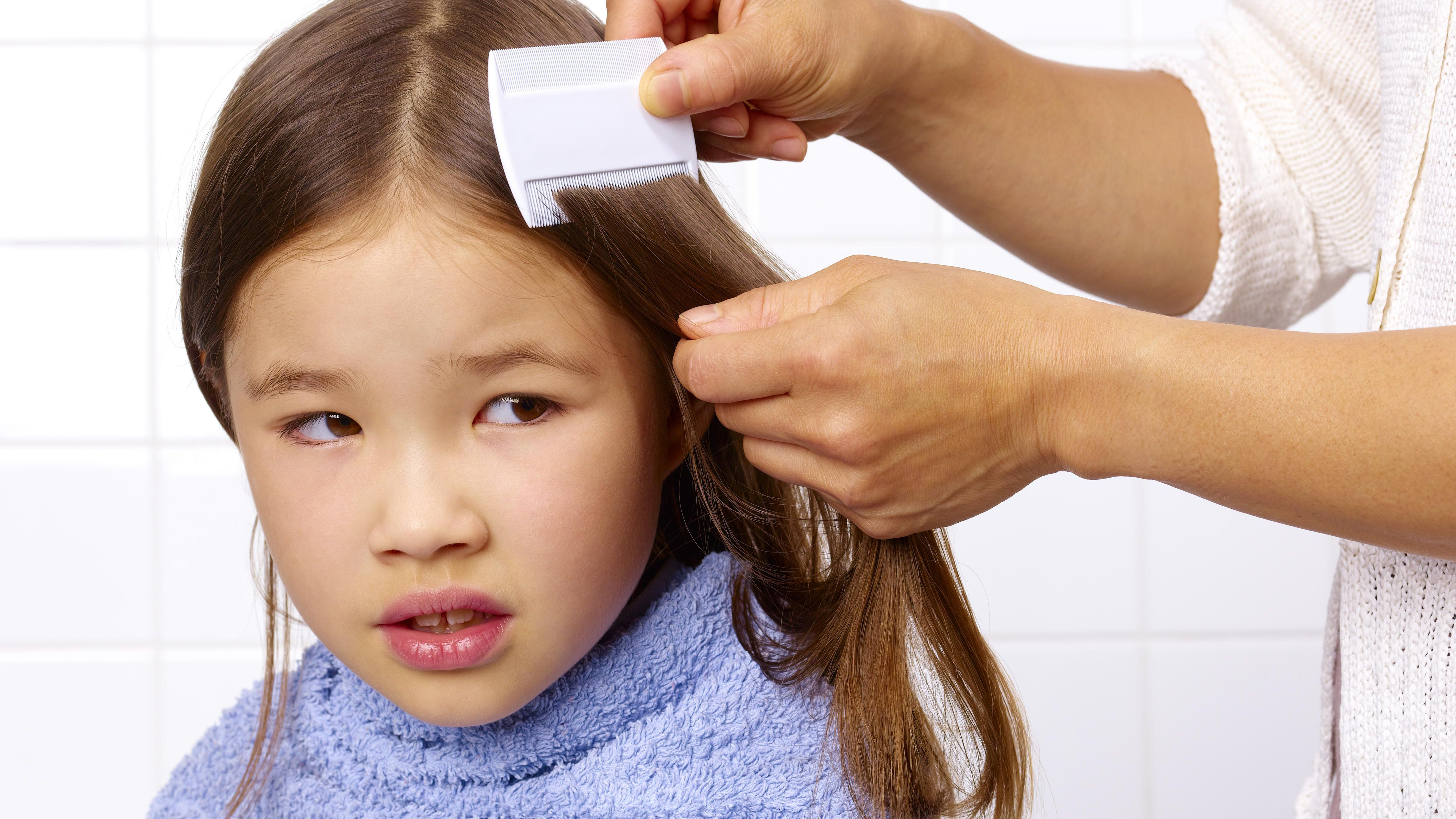 How to Find Head Lice in Your Child's Hair