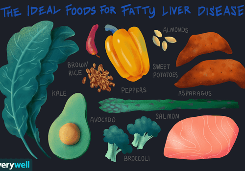 The Ideal Foods for Fatty Liver Disease