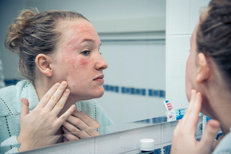 Woman looking at her red, irritated skin in the mirror