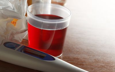 cough medicine in measuring cup and thermometer