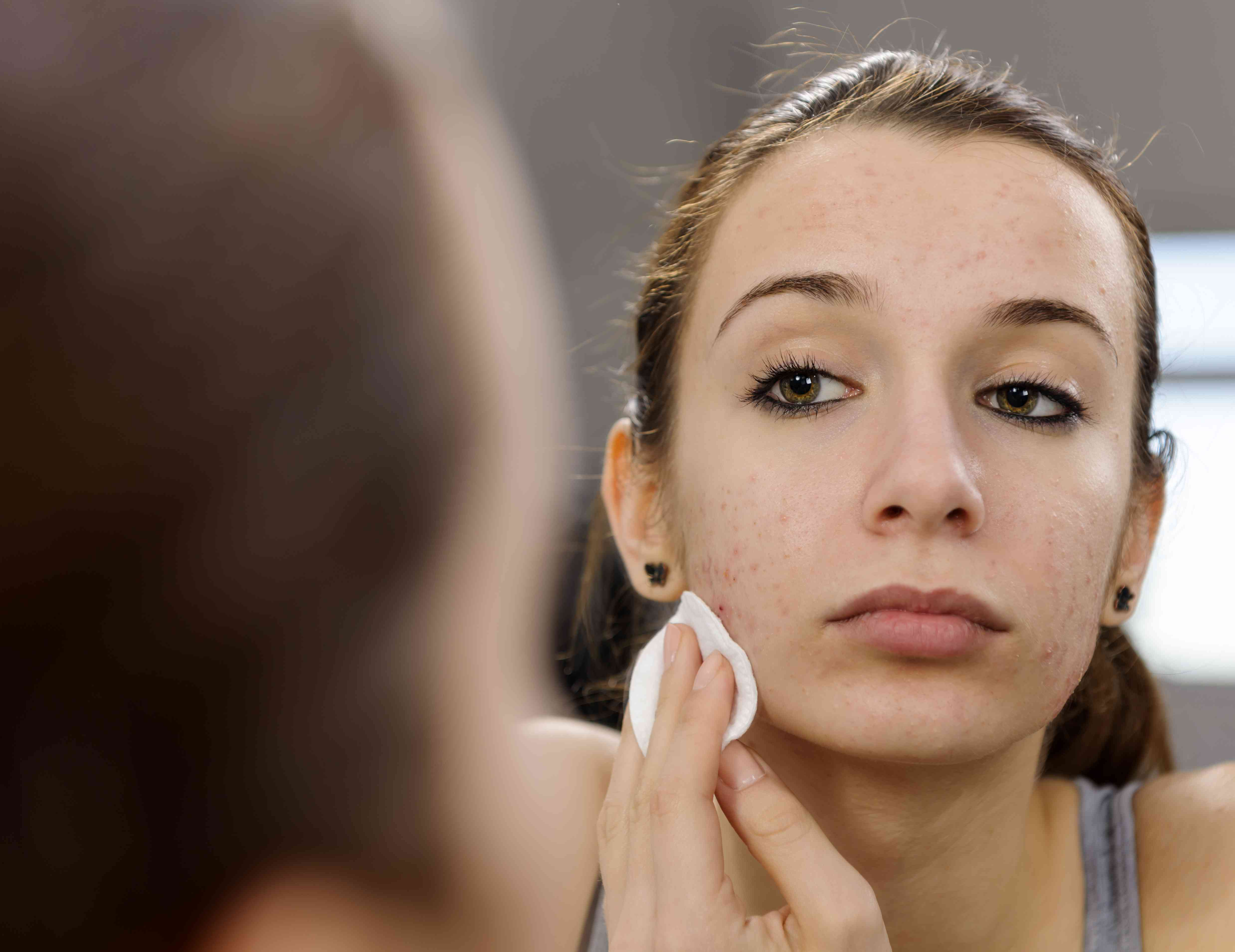 Teenager treating acne in mirror