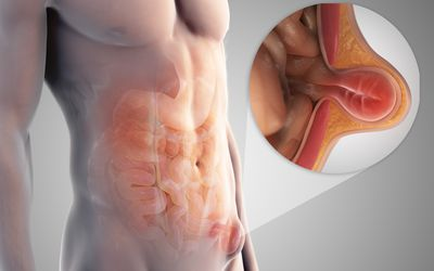 Symptoms And Treatment Of Inguinal Hernia