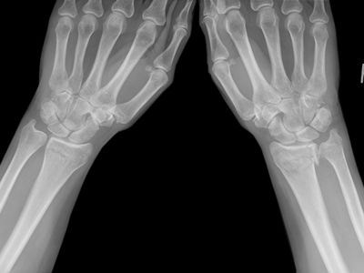 Colles fracture X-ray.