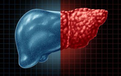 Fatty liver diease