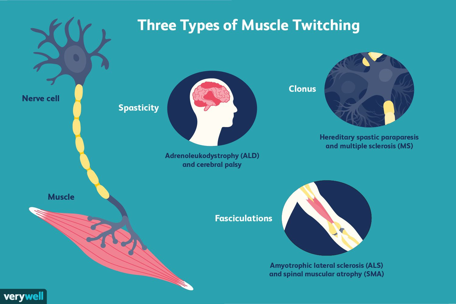 Three types of muscle twitching.