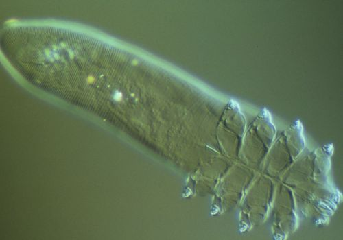 LM of Demodex folliculorum
