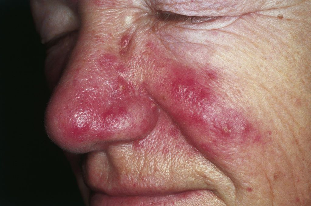 Skin Conditions That Cause Pimples