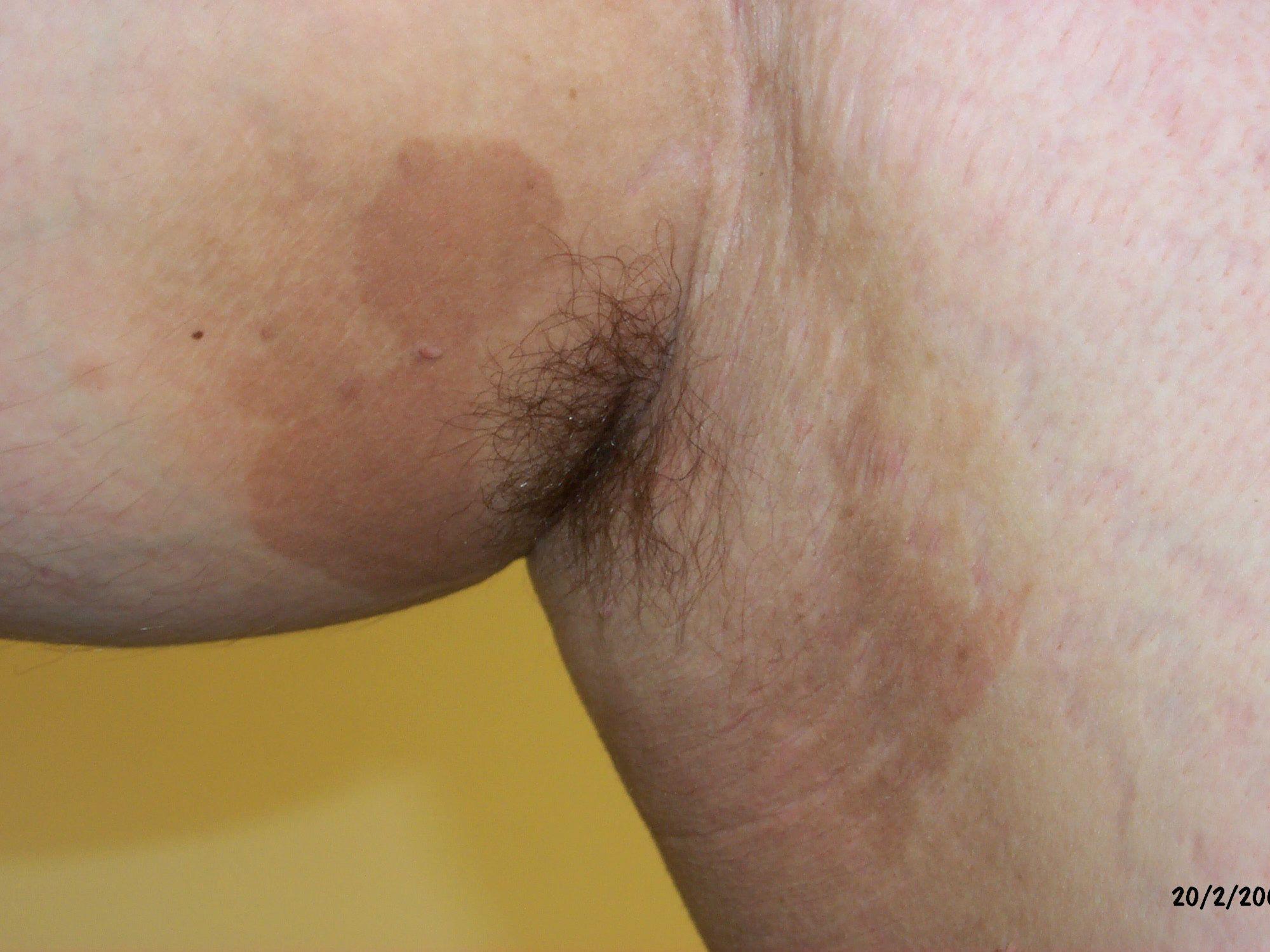 Erythrasma Symptoms Causes Diagnosis And Treatment