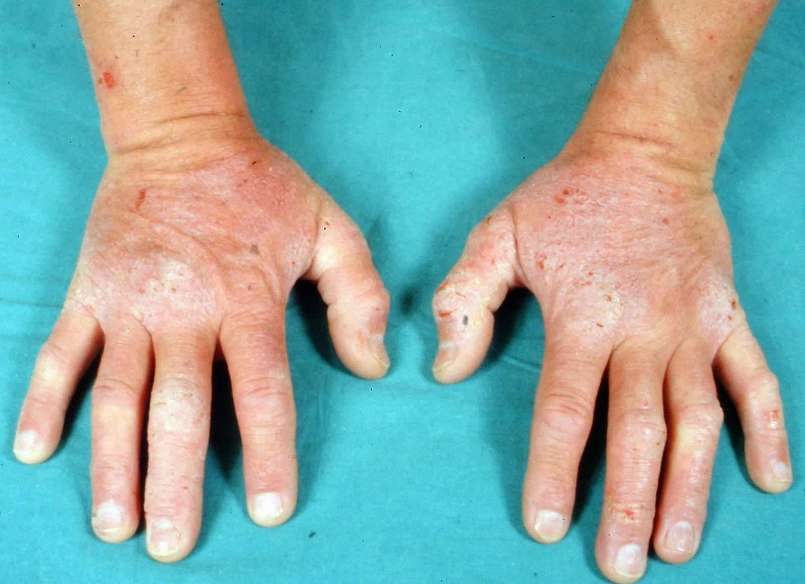 Dermatitis Herpetiformis (Celiac Disease Rash) Photos
