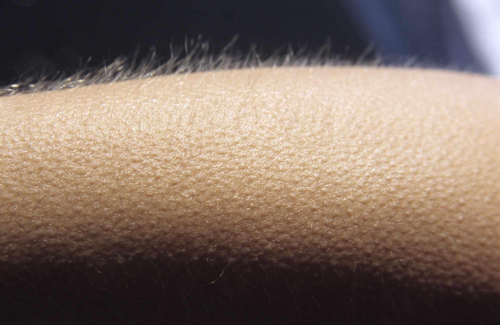 Goosebumps on a person's arm