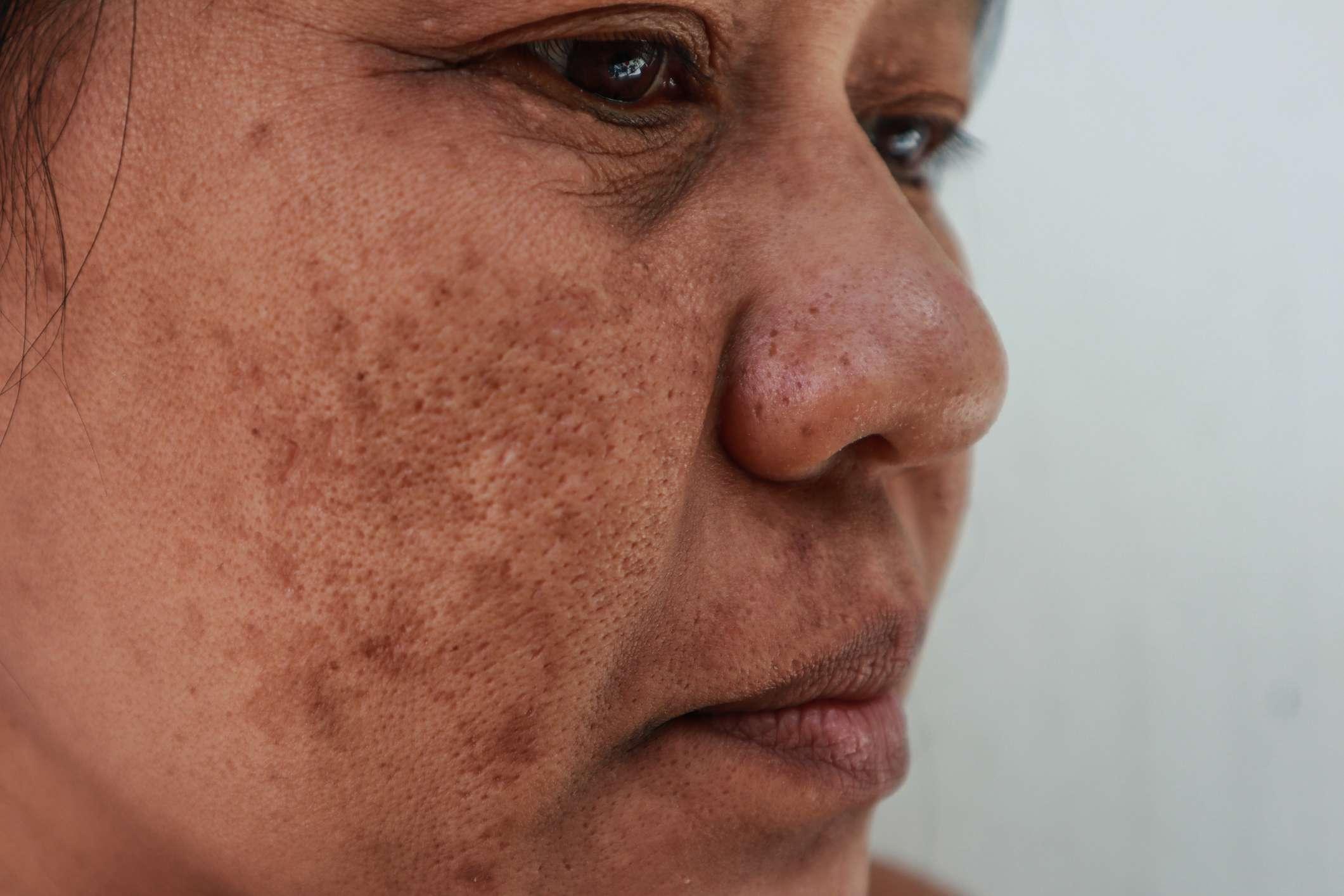 Skin problem, Closeup skin face asian women with spot melasma.
