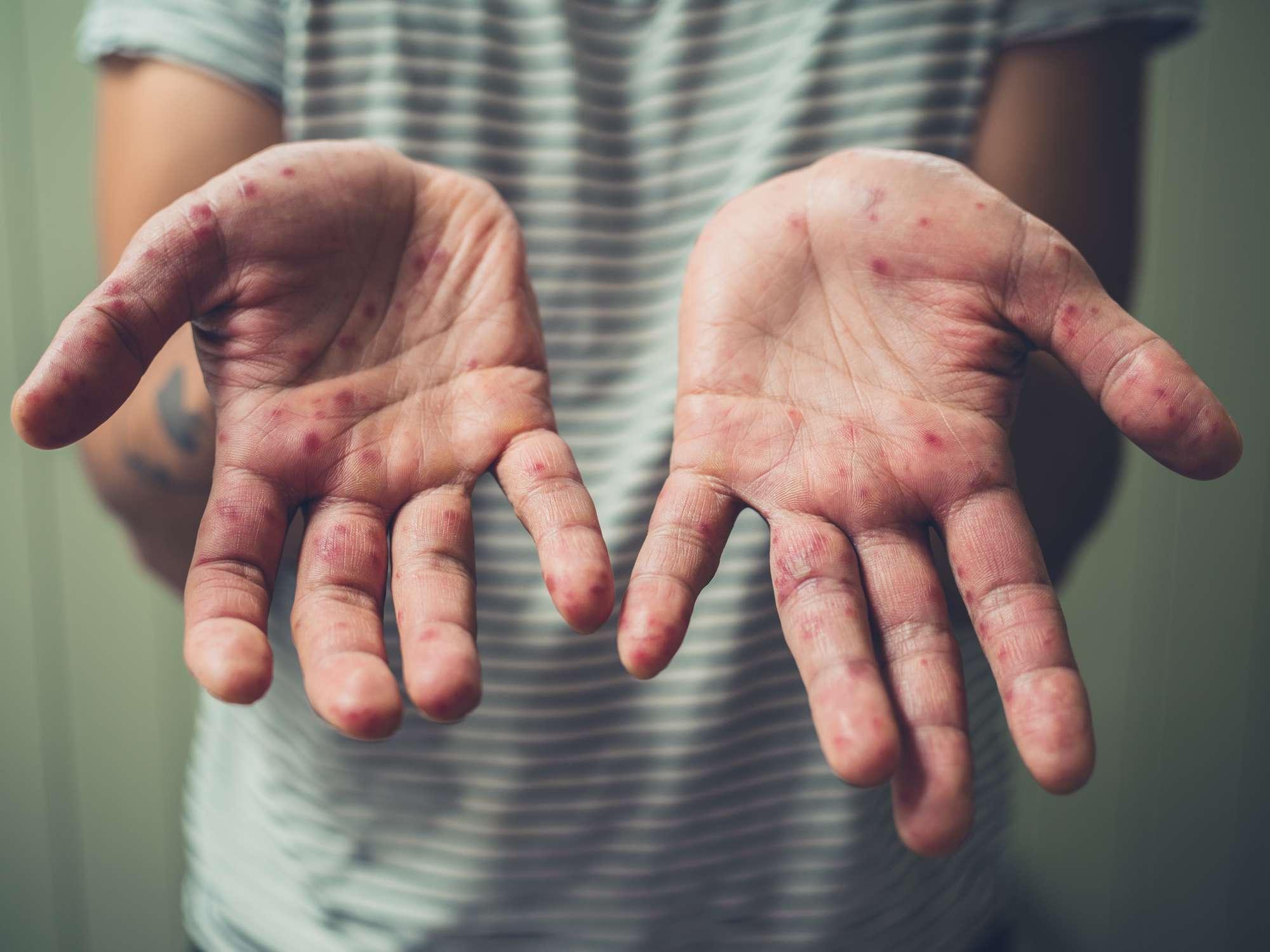Graft-versus-host disease skin symptoms