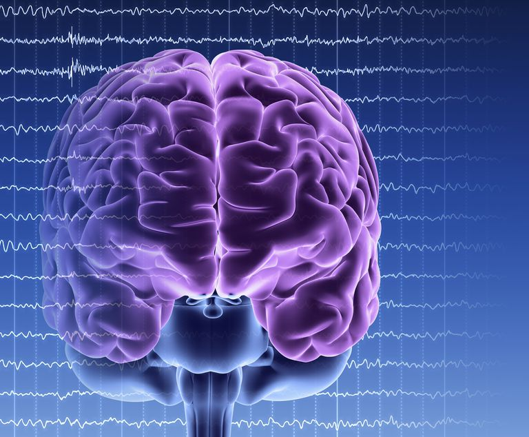 Brain Recovery Longer Than Clinical >> Confirmatory Tests For Brain Death