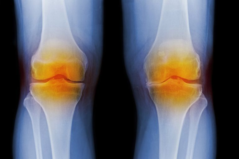 X-ray showing arthritic knees
