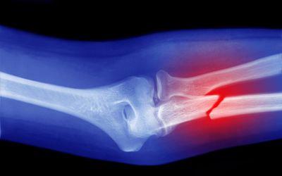 Broken arm