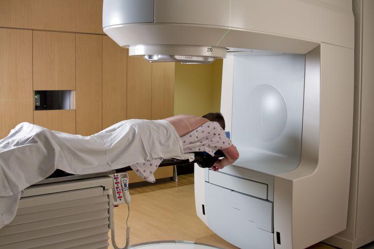 Ten Radiation Treatment Myths