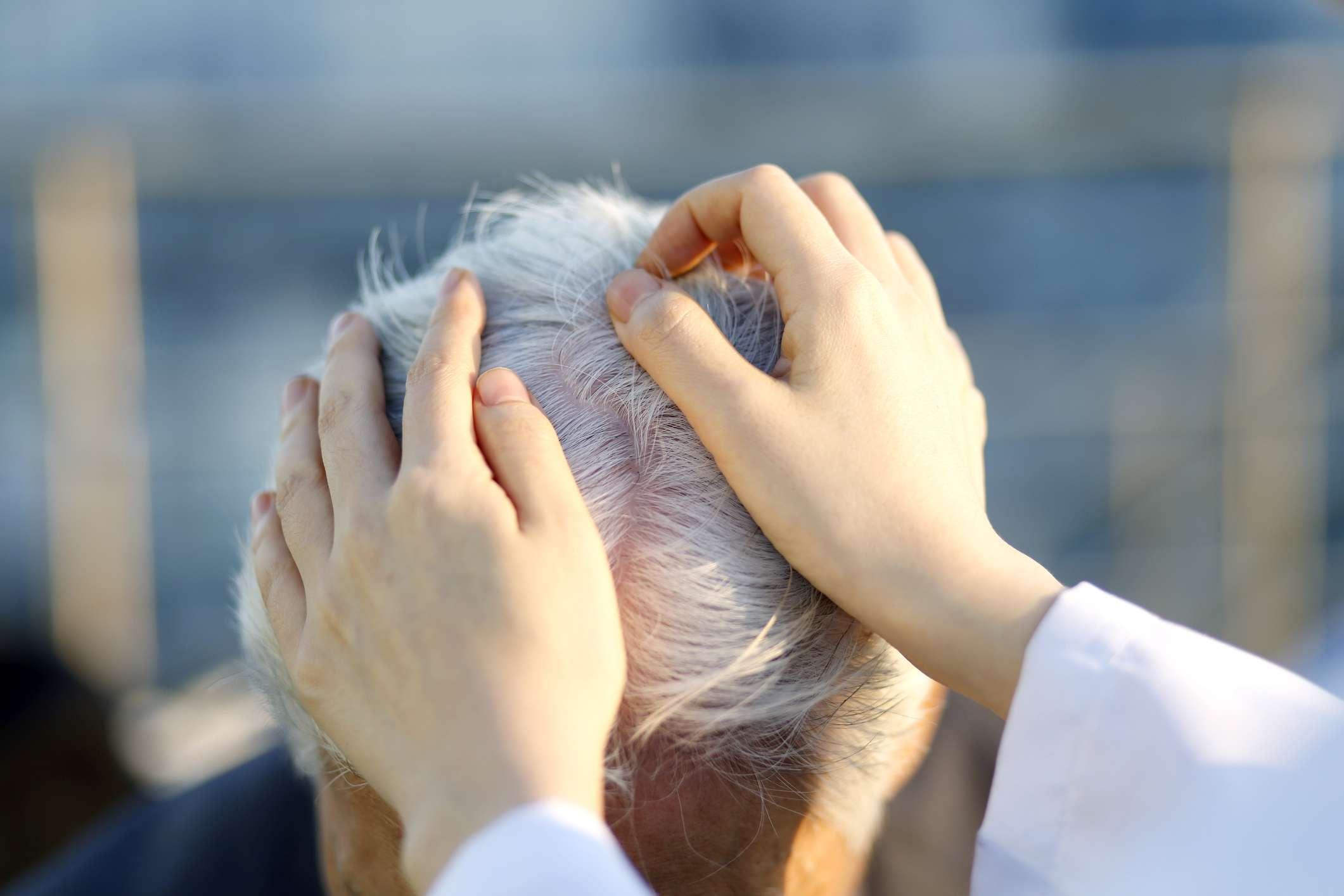 touching scalp