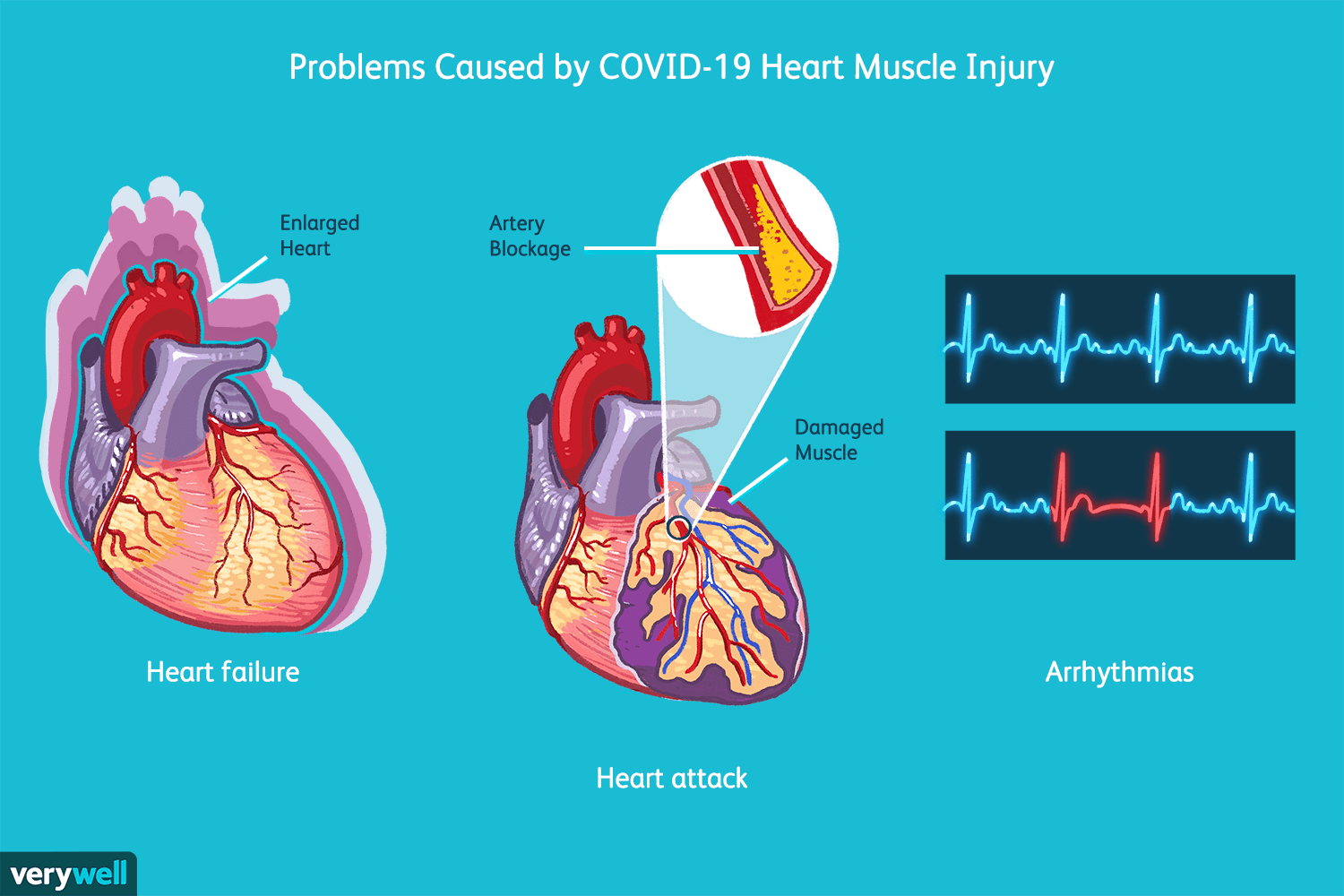 heart muscle injury and covid-19