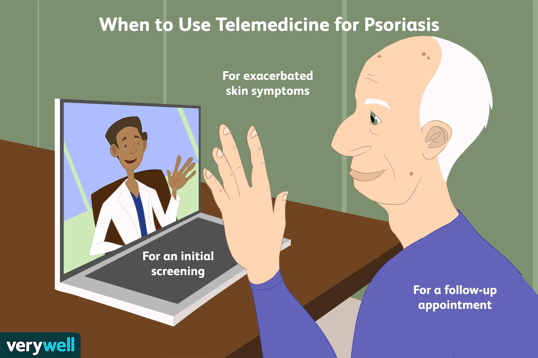 telemedicine for psoriasis
