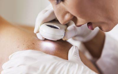 Doctor examining skin cancer