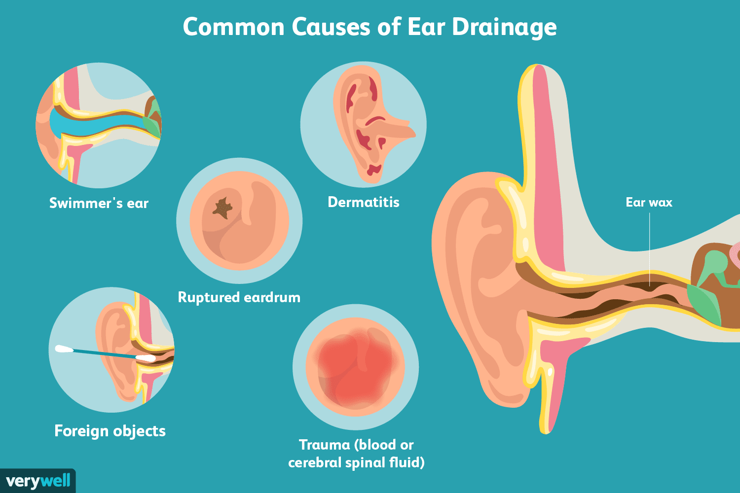 Causes And Treatment For Ear Drainage,Dark Reddish Brown Chocolate Cherry Hair Color For Short Hair