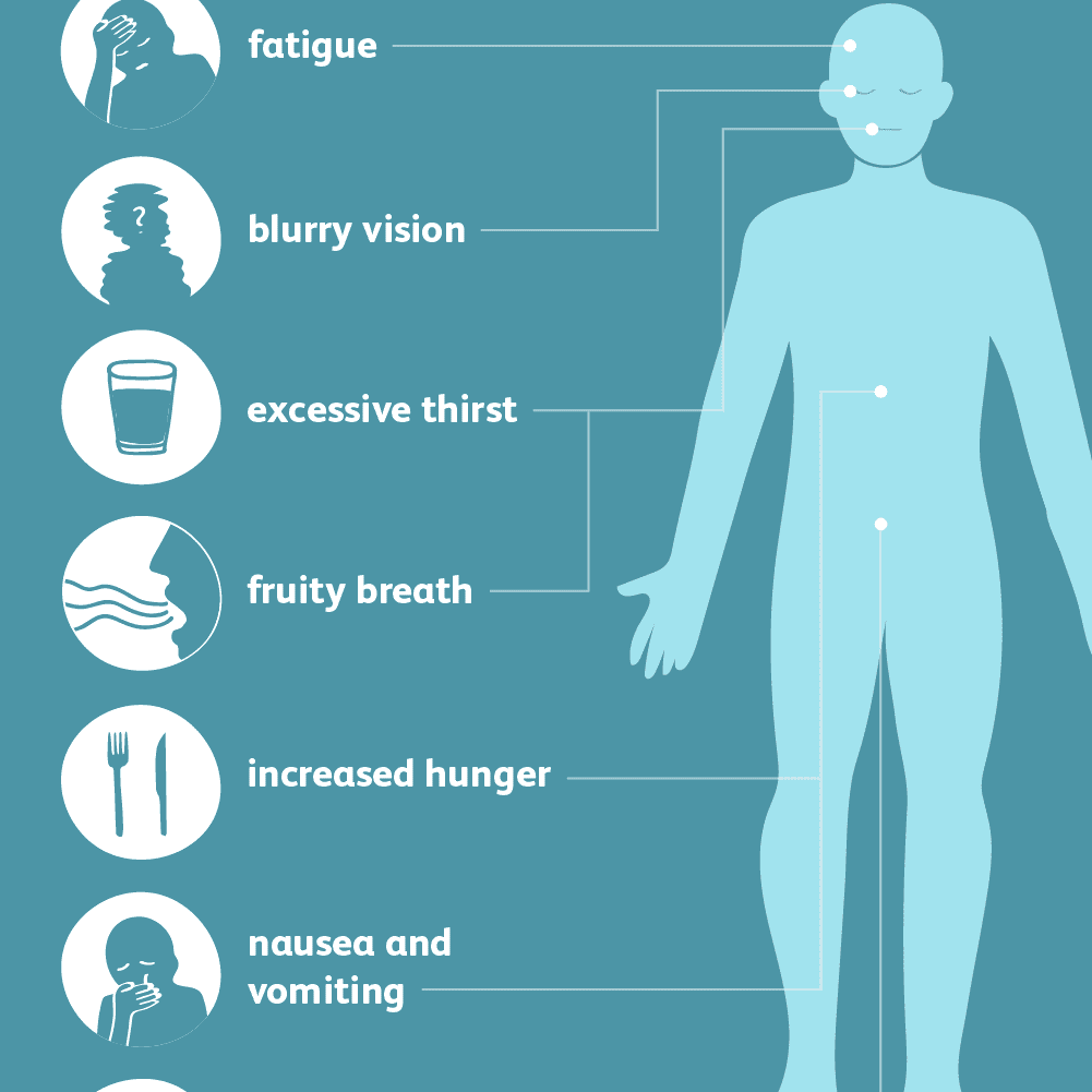 Illustrated human body with arrows outlining common symptoms of hyperglycemia. Text on image reads: Hyperglycemia: Common Symptoms: fatigue; blurry vision; excessive thirst; fruity breath; increased hunger; nausea and vomiting; increased urination.