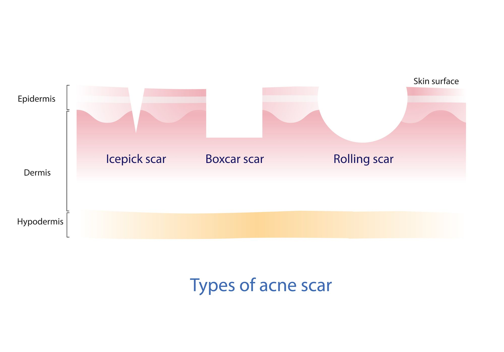 Illustration of different types of acne scars