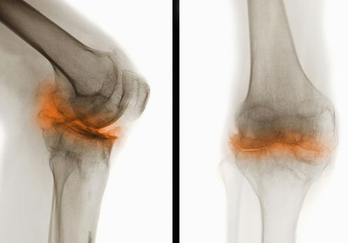 X-ray with osteoarthritis